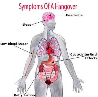 Symptoms Of A Hangover