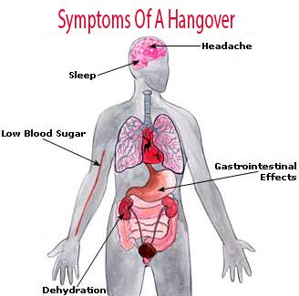 Symptoms Of A Hangover